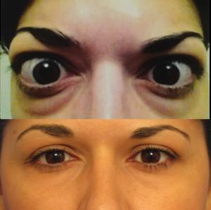 severe thyroid eye disease